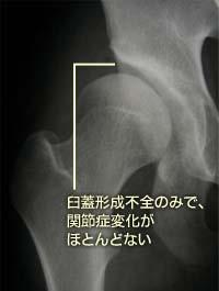 股関節OA①